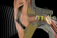 A diagram of sound waves entering the ear canal provided by Associated Hearing Professionals in Chesterfield, MO