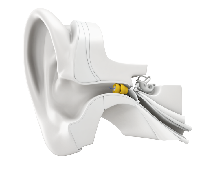 Diagram Of Ear Canal And Hearing Aids, Clayton, MO - Associated Hearing Professionals